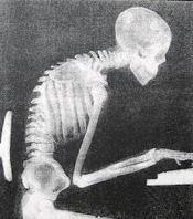 Poor Posture AmyandpALS